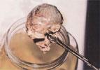 cabeza-aborto