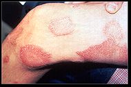 190px-Leprosy_thigh_demarcated_cutaneous_lesions